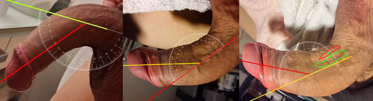 Pdf penis stretchers to straighten a bent penis
