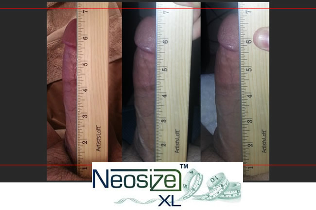 neosize-before-after5
