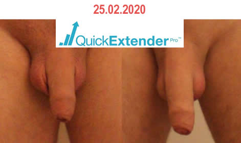 quick-extender-pro-before-after14